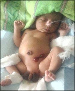 Birth-Defect-case-study-3rd-day